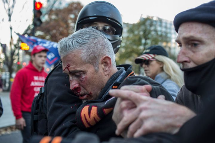 A supporter of Donald Trump is injured by anti-Trump...
