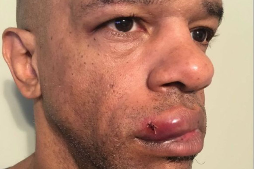 Luther Hall, St. Louis detective beaten by 3 white St. Louis cops