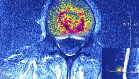 Multiple Myeloma, Bone Marrow